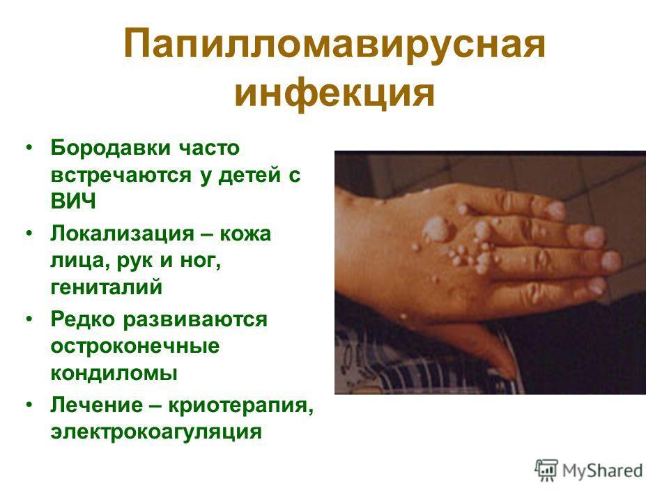Папилломавирусная инфекция Бородавки часто встречаются у детей с ВИЧ Локализация – кожа лица, рук и ног, гениталий Редко развиваются остроконечные кондиломы Лечение – криотерапия, электрокоагуляция