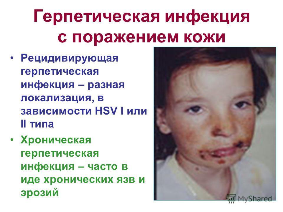 Герпетическая инфекция с поражением кожи Рецидивирующая герпетическая инфекция – разная локализация, в зависимости HSV I или II типа Хроническая герпетическая инфекция – часто в иде хронических язв и эрозий