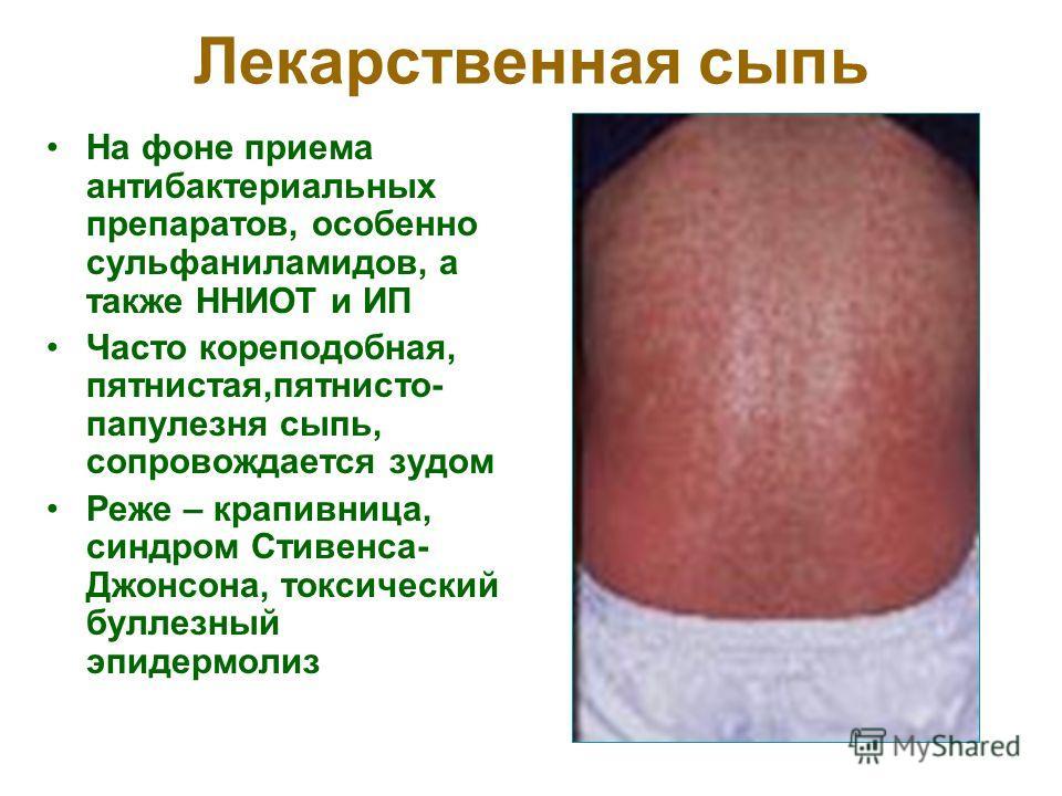 Лекарственная сыпь На фоне приема антибактериальных препаратов, особенно сульфаниламидов, а также ННИОТ и ИП Часто кореподобная, пятнистая,пятнисто- папулезня сыпь, сопровождается зудом Реже – крапивница, синдром Стивенса- Джонсона, токсический булле