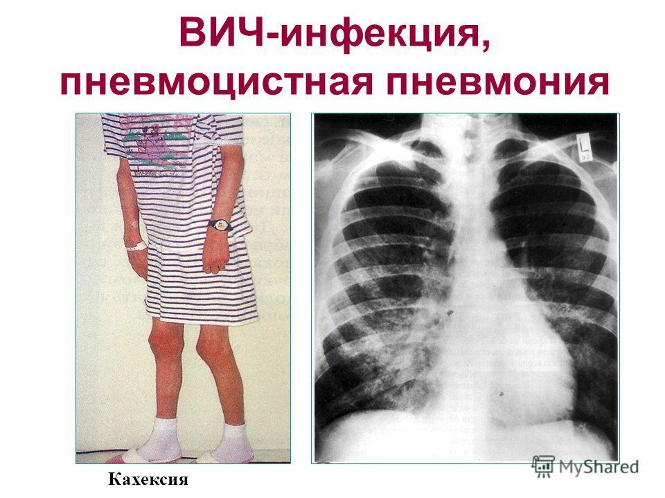 ВИЧ-инфекция, пневмоцистная пневмония Кахексия
