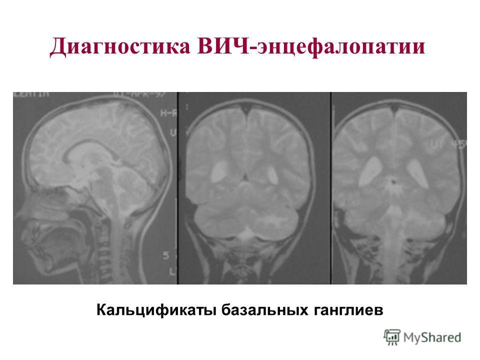 Диагностика ВИЧ-энцефалопатии Кальцификаты базальных ганглиев