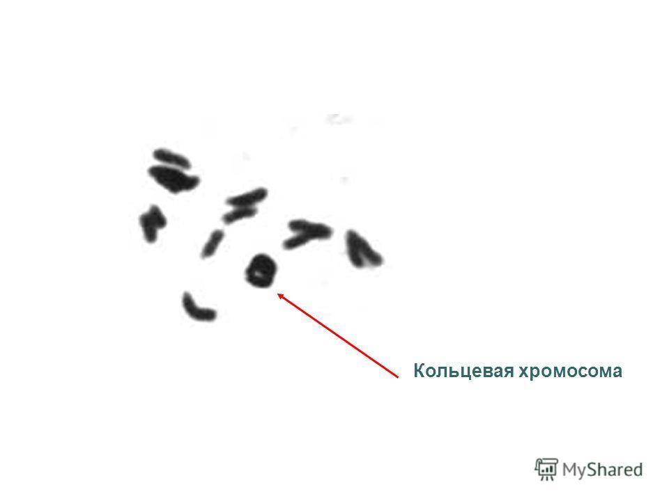 Кольцевая хромосома