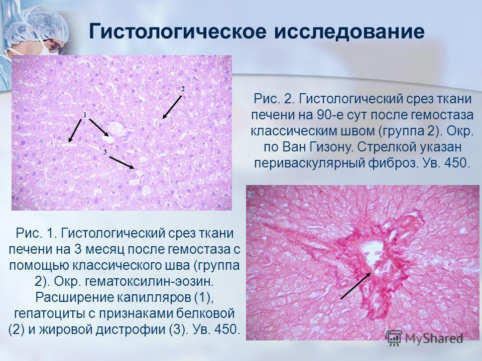 Гистологическое исследование Рис. 1. Гистологический срез ткани печени на 3 месяц после гемостаза с помощью классического шва (группа 2). Окр. гематоксилин-эозин. Расширение капилляров (1), гепатоциты с признаками белковой (2) и жировой дистрофии (3)