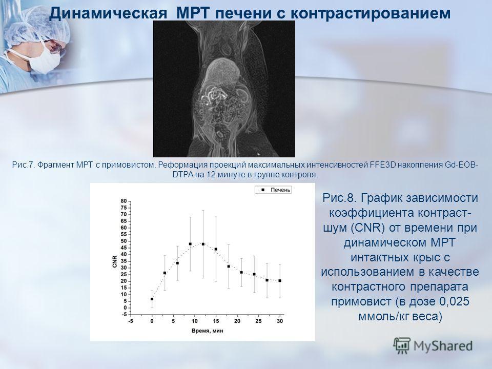 Рис.8. График зависимости коэффициента контраст- шум (CNR) от времени при динамическом МРТ интактных крыс с использованием в качестве контрастного препарата примовист (в дозе 0,025 ммоль/кг веса) Рис.7. Фрагмент МРТ с примовистом. Реформация проекций
