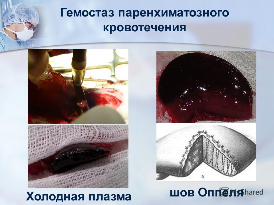 Гемостаз паренхиматозного кровотечения Холодная плазма шов Оппеля