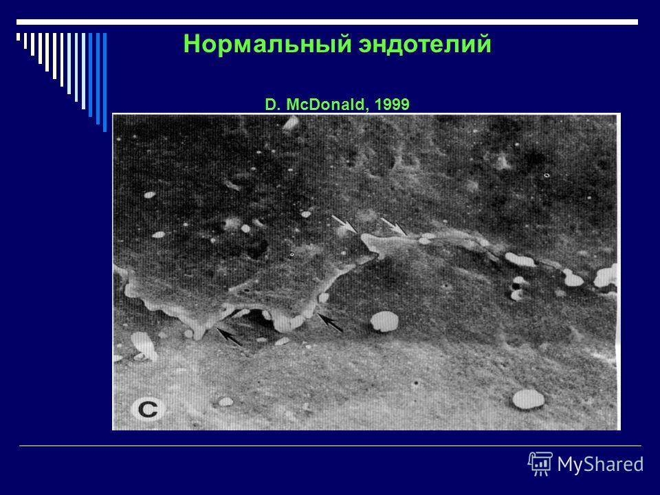Нормальный эндотелий D. McDonald, 1999