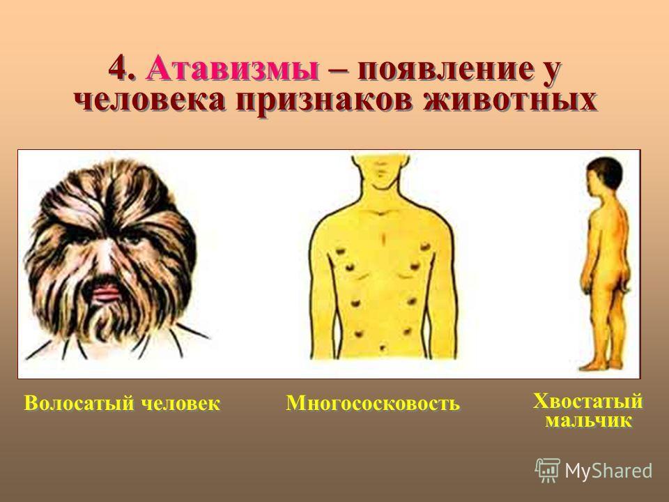 4. Атавизмы – появление у человека признаков животных Волосатый человек Многососковость Хвостатый мальчик