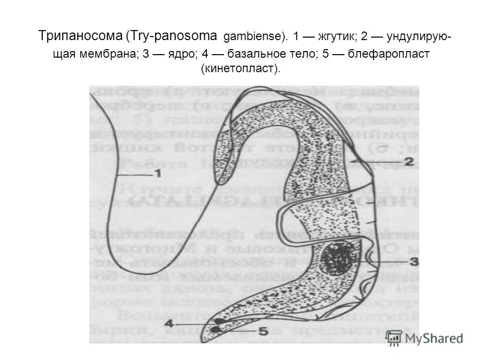 Трипаносома (Try-panosoma gambiense). 1 жгутик; 2 ундулирую- щая мембрана; 3 ядро; 4 базальное тело; 5 блефаропласт (кинетопласт).