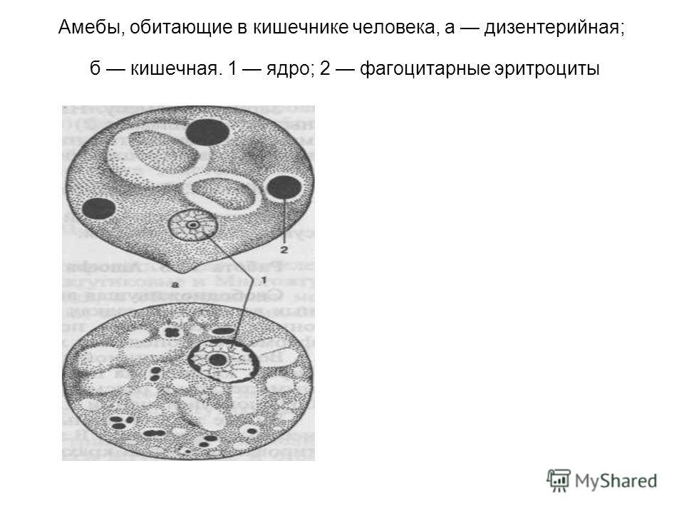 Амебы, обитающие в кишечнике человека, а дизентерийная; б кишечная. 1 ядро; 2 фагоцитарные эритроциты