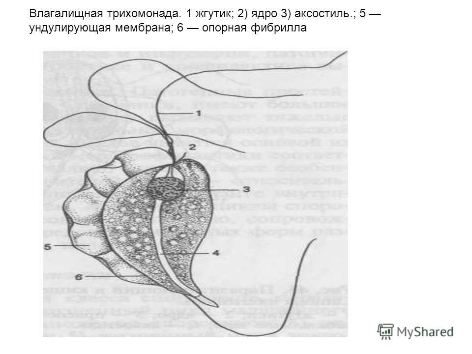 Влагалищная трихомонада. 1 жгутик; 2) ядро 3) аксостиль.; 5 ундулирующая мембрана; 6 опорная фибрилла