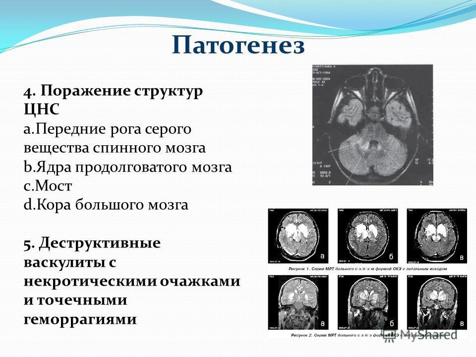 Патогенез 4. Поражение структур ЦНС a.Передние рога серого вещества спинного мозга b.Ядра продолговатого мозга c.Мост d.Кора большого мозга 5. Деструктивные васкулиты с некротическими очажками и точечными геморрагиями