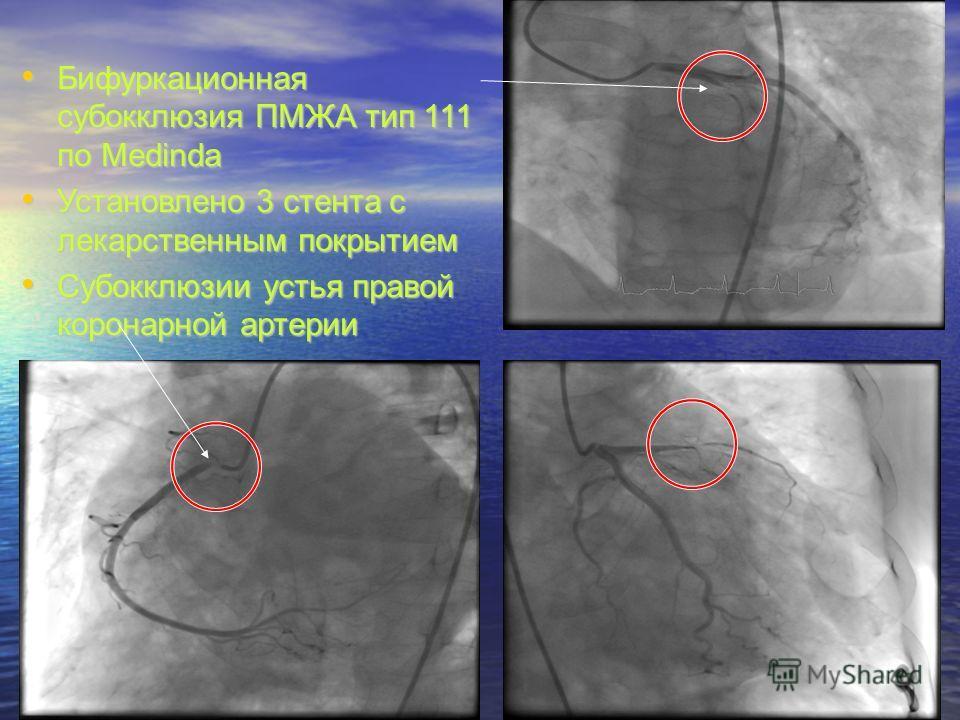 Бифуркационная субокклюзия ПМЖА тип 111 по Medinda Бифуркационная субокклюзия ПМЖА тип 111 по Medinda Установлено 3 стента с лекарственным покрытием Установлено 3 стента с лекарственным покрытием Субокклюзии устья правой коронарной артерии Субокклюзи