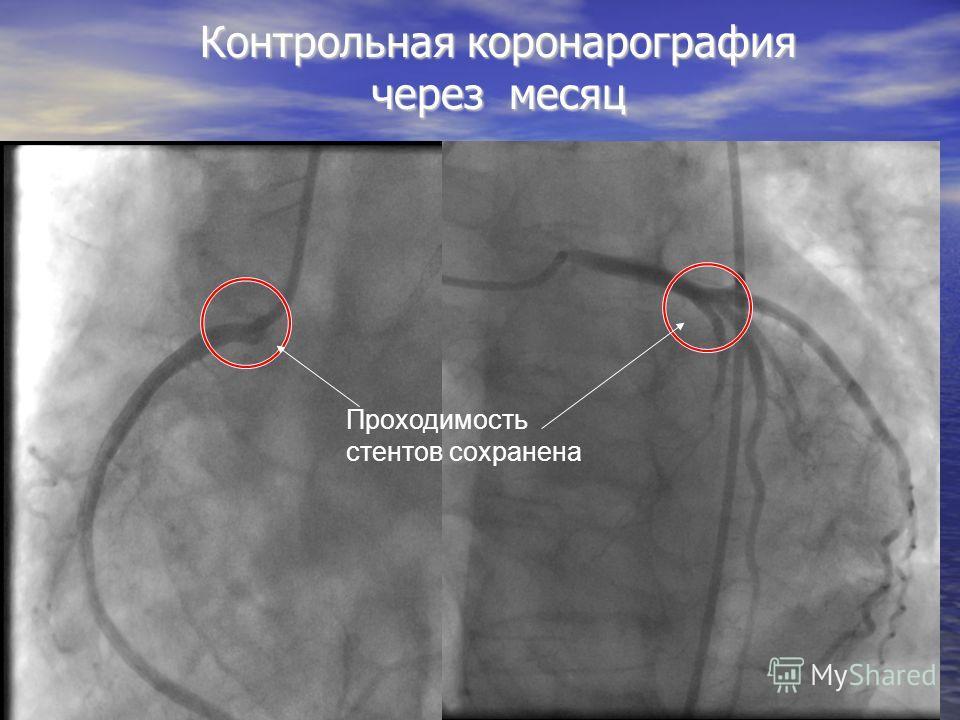 Контрольная коронарография через месяц Проходимость стентов сохранена