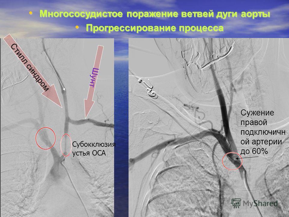 Многососудистое поражение ветвей дуги аорты Многососудистое поражение ветвей дуги аорты Прогрессирование процесса Прогрессирование процесса Стилл синдром Шунт Сужение правой подключичн ой артерии до 60% Субокклюзия устья ОСА