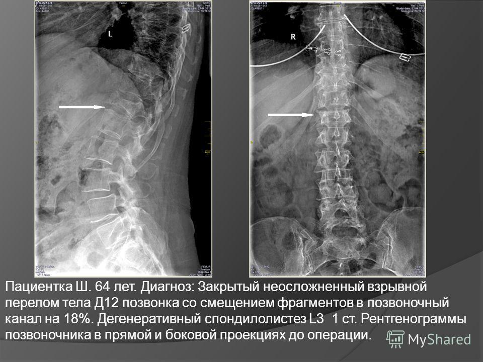 Пациентка Ш. 64 лет. Диагноз: Закрытый неосложненный взрывной перелом тела Д12 позвонка со смещением фрагментов в позвоночный канал на 18%. Дегенеративный спондилолистез L3 1 ст. Рентгенограммы позвоночника в прямой и боковой проекциях до операции.