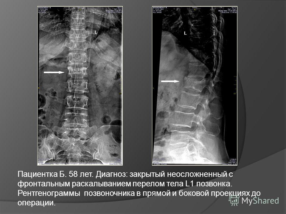 Пациентка Б. 58 лет. Диагноз: закрытый неосложненный с фронтальным раскалыванием перелом тела L1 позвонка. Рентгенограммы позвоночника в прямой и боковой проекциях до операции.