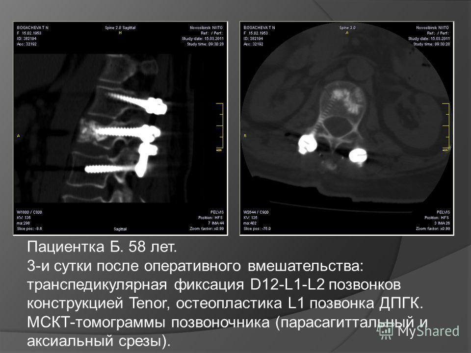 Пациентка Б. 58 лет. 3-и сутки после оперативного вмешательства: транспедикулярная фиксация D12-L1-L2 позвонков конструкцией Tenor, остеопластика L1 позвонка ДПГК. МСКТ-томограммы позвоночника (парасагиттальный и аксиальный срезы).