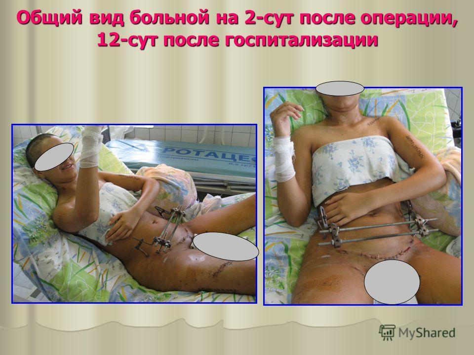 Общий вид больной на 2-сут после операции, 12-сут после госпитализации