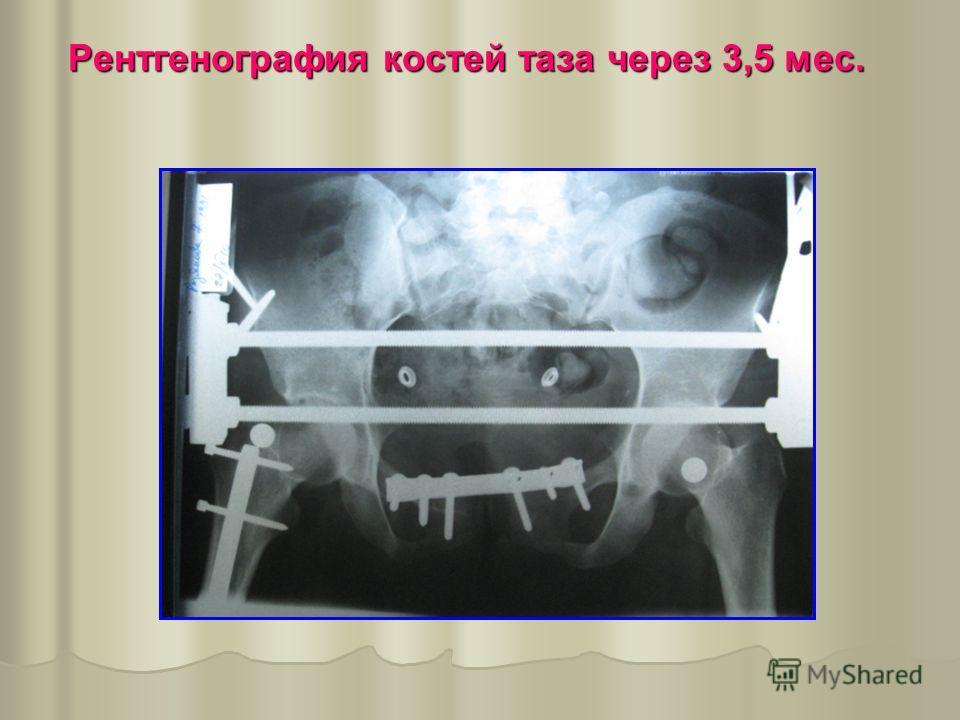 Рентгенография костей таза через 3,5 мес.