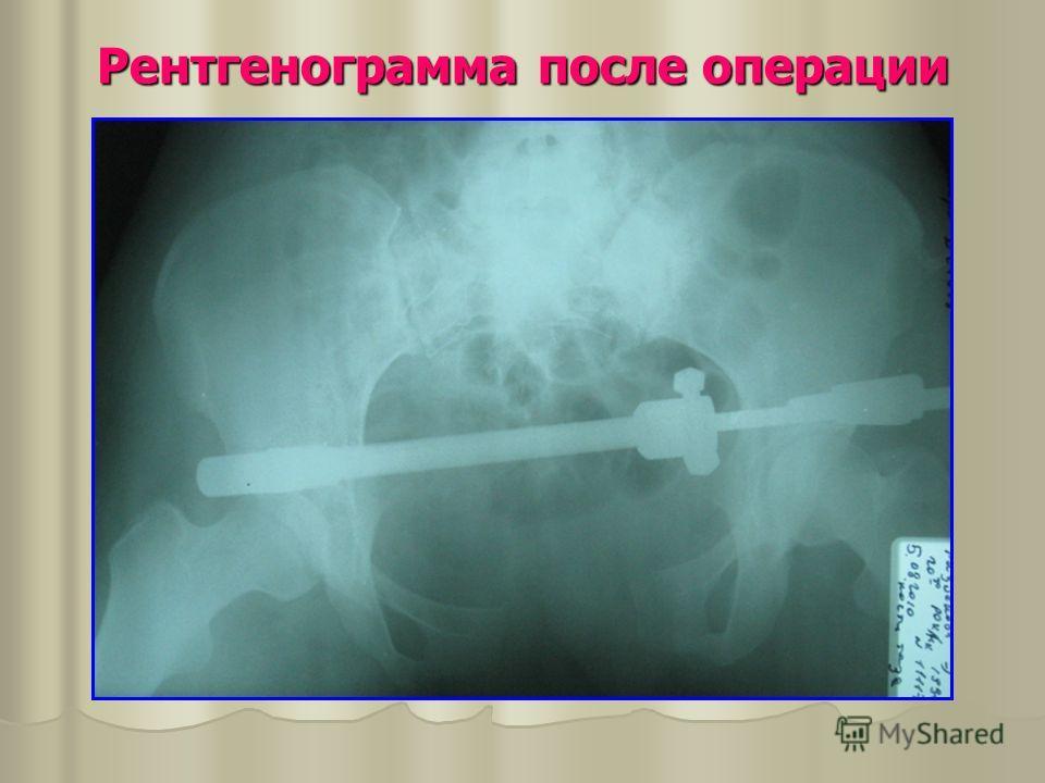 Рентгенограмма после операции