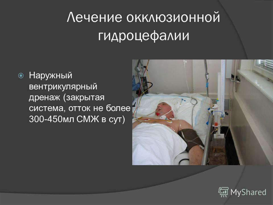Лечение окклюзионной гидроцефалии Наружный вентрикулярный дренаж (закрытая система, отток не более 300-450мл СМЖ в сут)