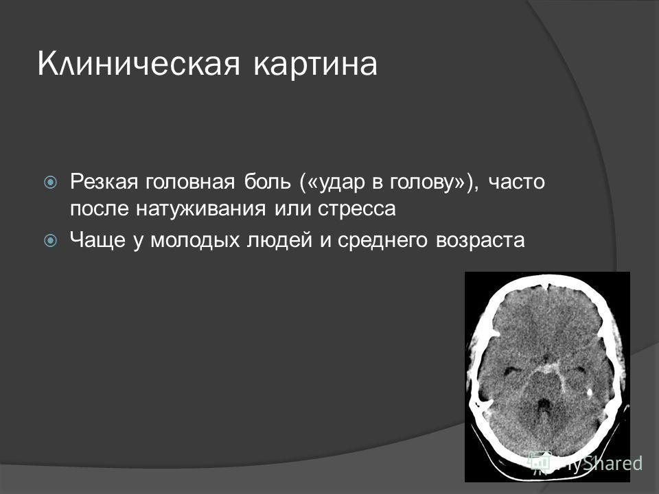 Клиническая картина Резкая головная боль («удар в голову»), часто после натуживания или стресса Чаще у молодых людей и среднего возраста