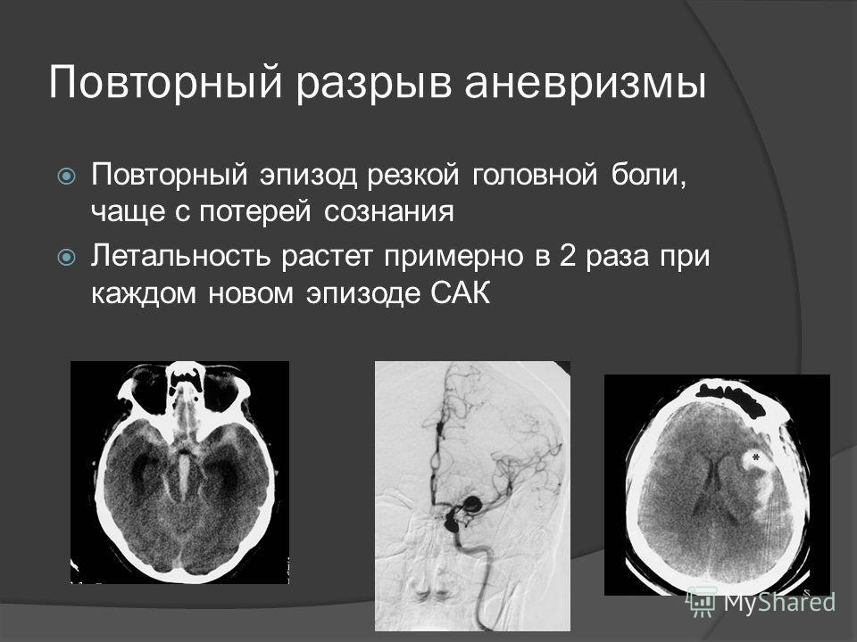 Повторный разрыв аневризмы Повторный эпизод резкой головной боли, чаще с потерей сознания Летальность растет примерно в 2 раза при каждом новом эпизоде САК