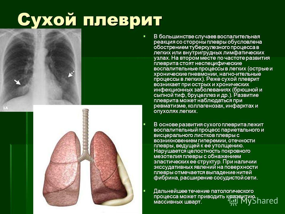 Сухой плеврит В большинстве случаев воспалительная реакция со стороны плевры обусловлена обострением туберкулезного процесса в легких или внутригрудных лимфатических узлах. На втором месте по частоте развития плеврита стоят неспецифические воспалител