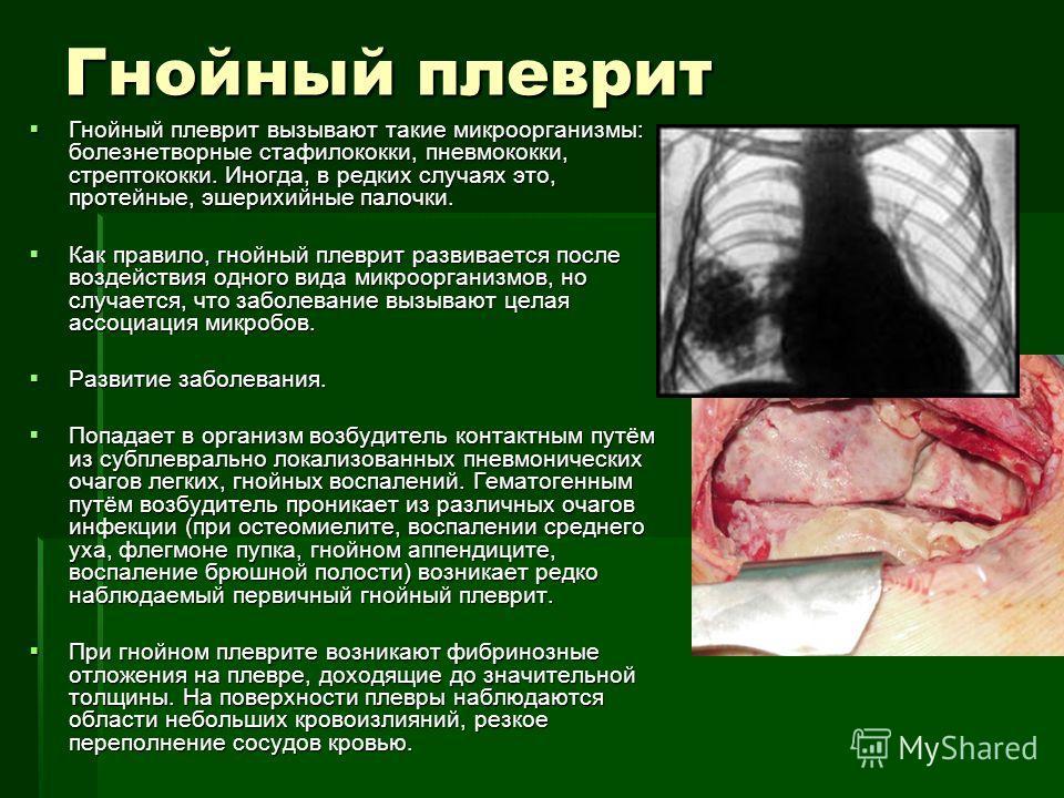 Гнойный плеврит Гнойный плеврит вызывают такие микроорганизмы: болезнетворные стафилококки, пневмококки, стрептококки. Иногда, в редких случаях это, протейные, эшерихийные палочки. Гнойный плеврит вызывают такие микроорганизмы: болезнетворные стафило