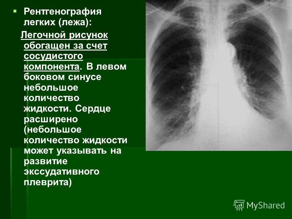 Рентгенография легких (лежа): Легочной рисунок обогащен за счет сосудистого компонента. В левом боковом синусе небольшое количество жидкости. Сердце расширено (небольшое количество жидкости может указывать на развитие экссудативного плеврита)
