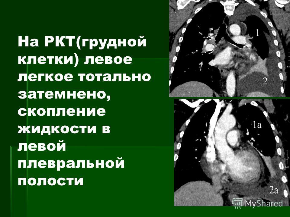 На РКТ(грудной клетки) левое легкое тотально затемнено, скопление жидкости в левой плевральной полости