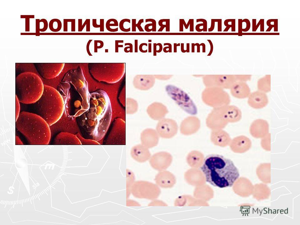 Тропическая малярия (P. Falciparum)
