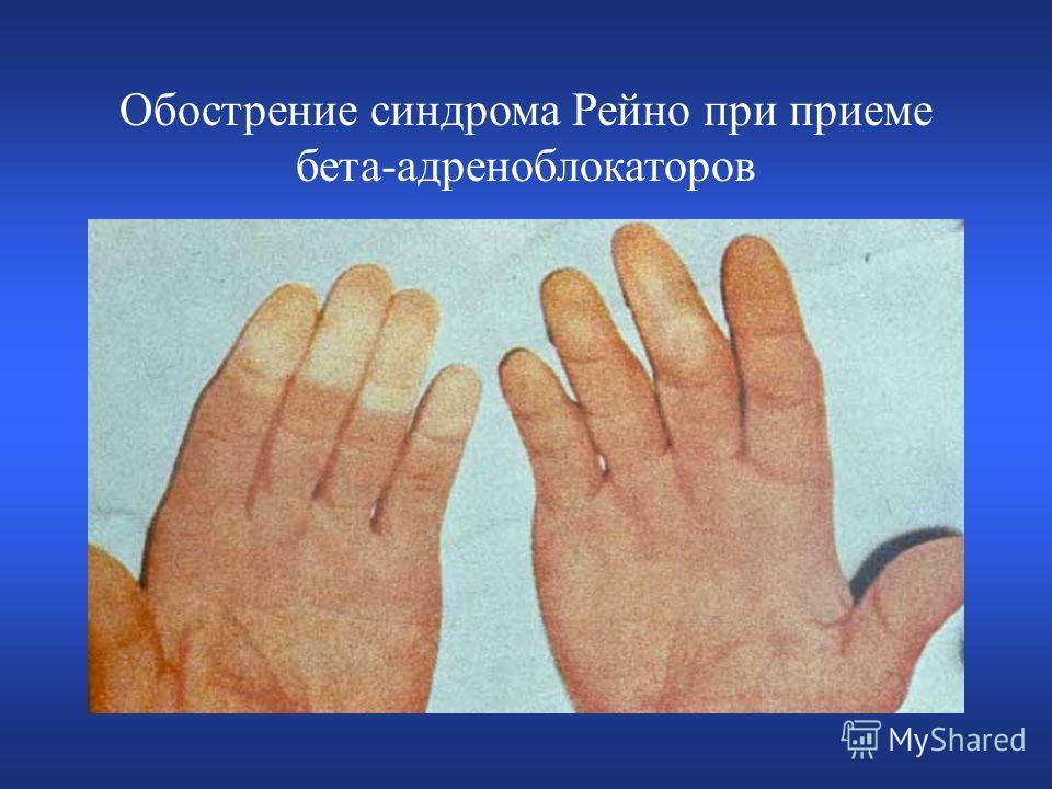 Обострение синдрома Рейно при приеме бета-адреноблокаторов