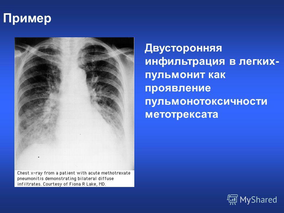 Пример Двусторонняя инфильтрация в легких- пульмонит как проявление пульмонотоксичности метотрексата