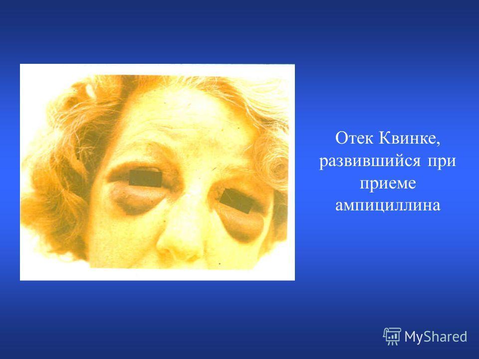 Отек Квинке, развившийся при приеме ампициллина