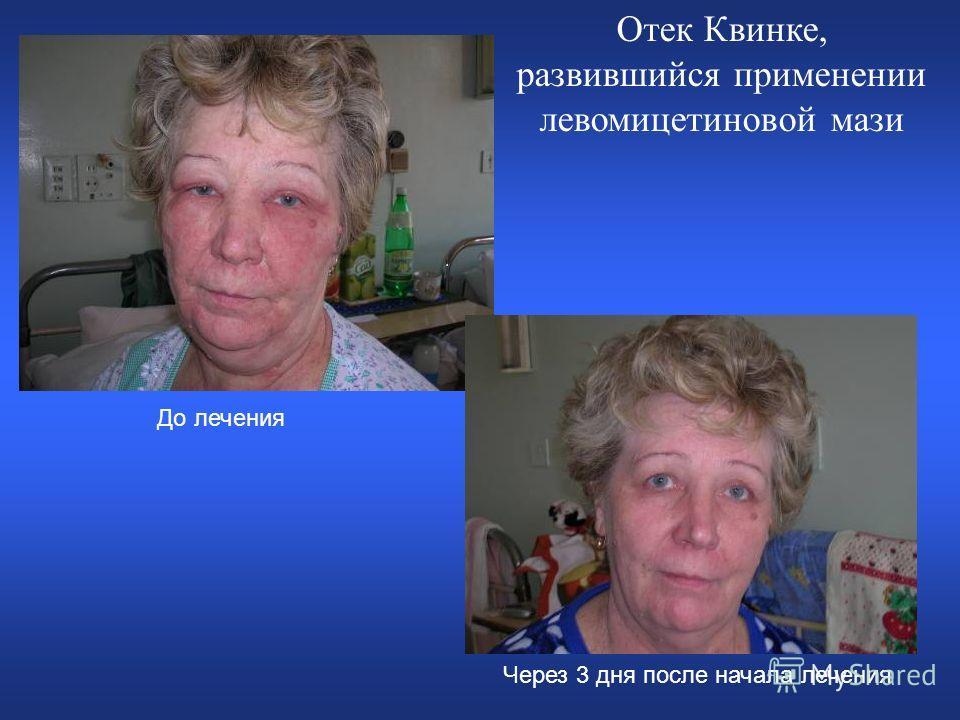 Отек Квинке, развившийся применении левомицетиновой мази До лечения Через 3 дня после начала лечения