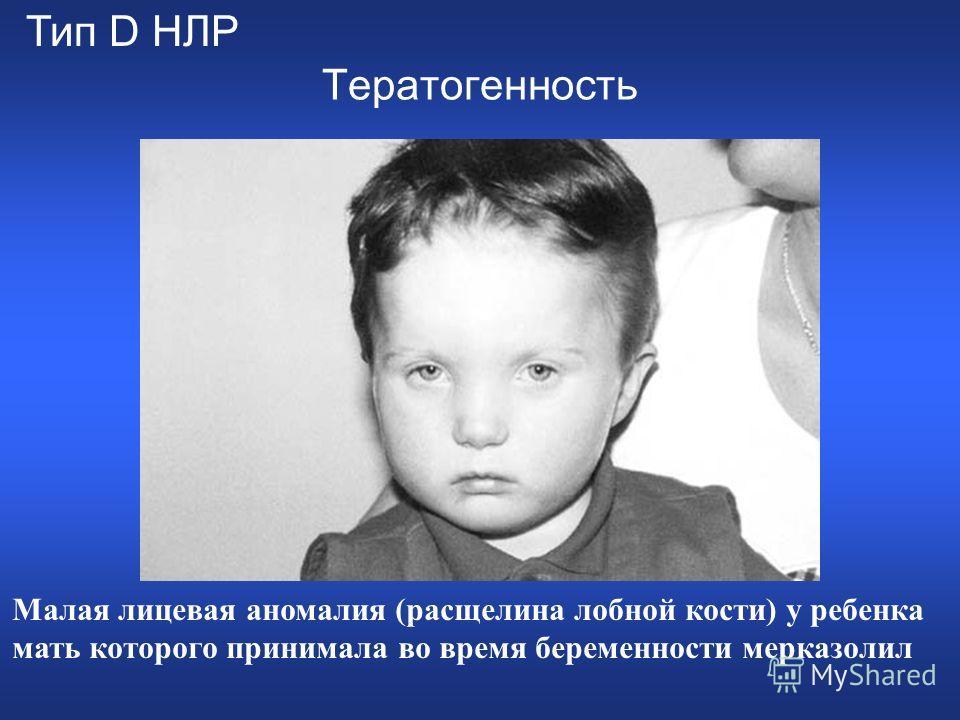 Тератогенность Малая лицевая аномалия (расщелина лобной кости) у ребенка мать которого принимала во время беременности мерказолил Тип D НЛР