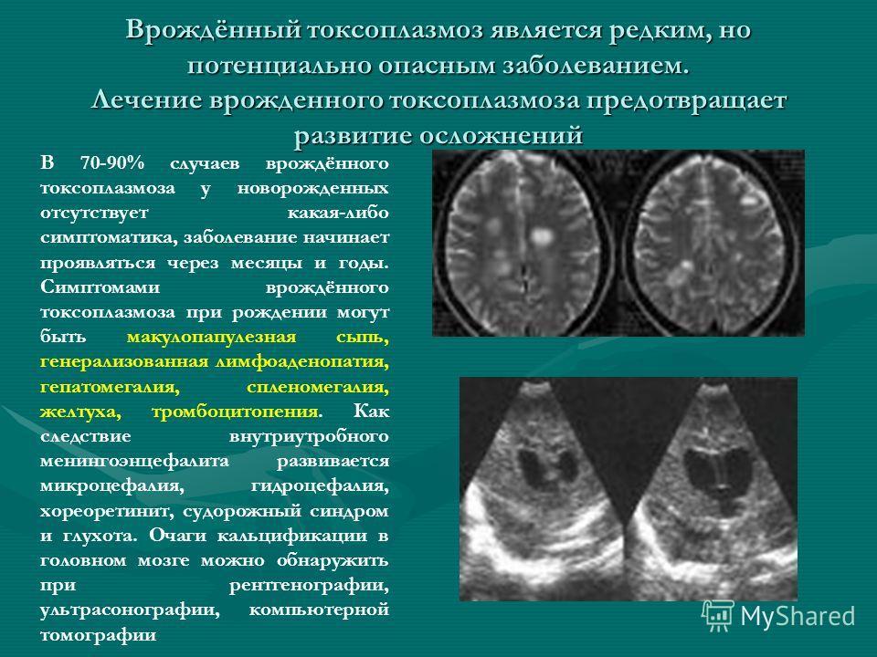 Врождённый токсоплазмоз является редким, но потенциально опасным заболеванием. Лечение врожденного токсоплазмоза предотвращает развитие осложнений В 70-90% случаев врождённого токсоплазмоза у новорожденных отсутствует какая-либо симптоматика, заболев