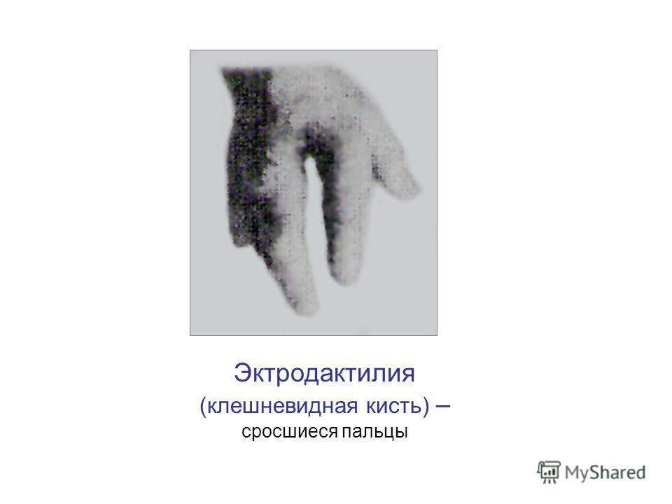 Эктродактилия (клешневидная кисть) – сросшиеся пальцы