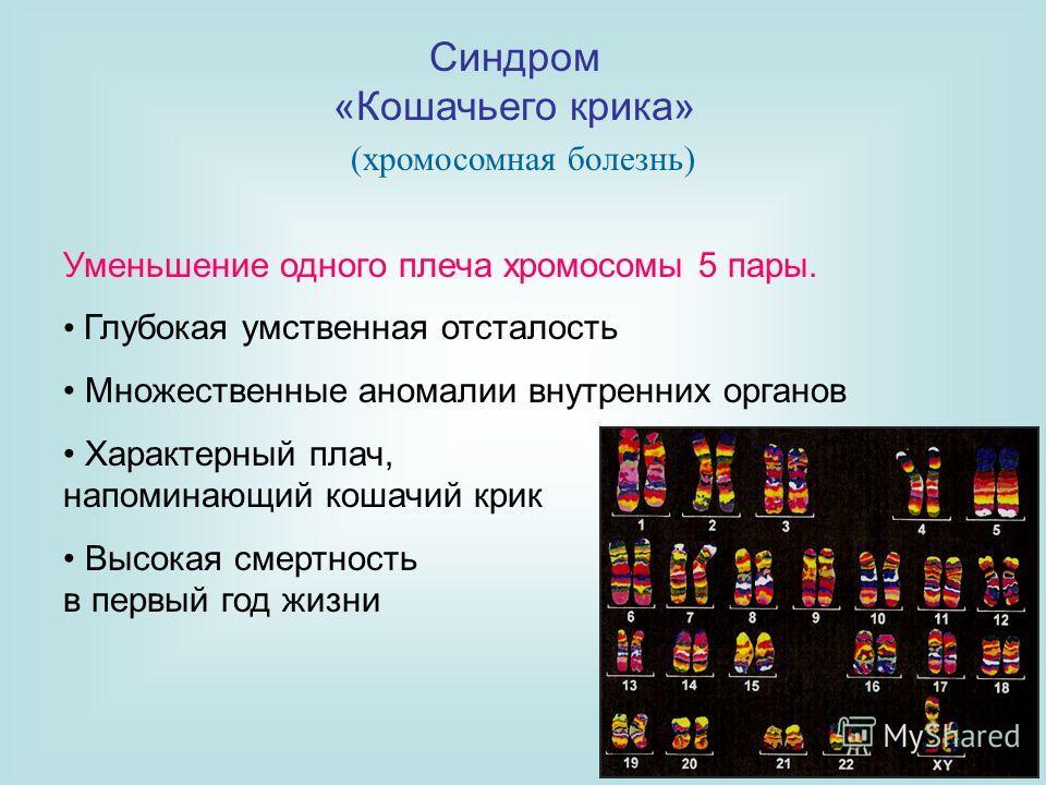 Синдром «Кошачьего крика» Уменьшение одного плеча хромосомы 5 пары. Глубокая умственная отсталость Множественные аномалии внутренних органов Характерный плач, напоминающий кошачий крик Высокая смертность в первый год жизни (хромосомная болезнь)