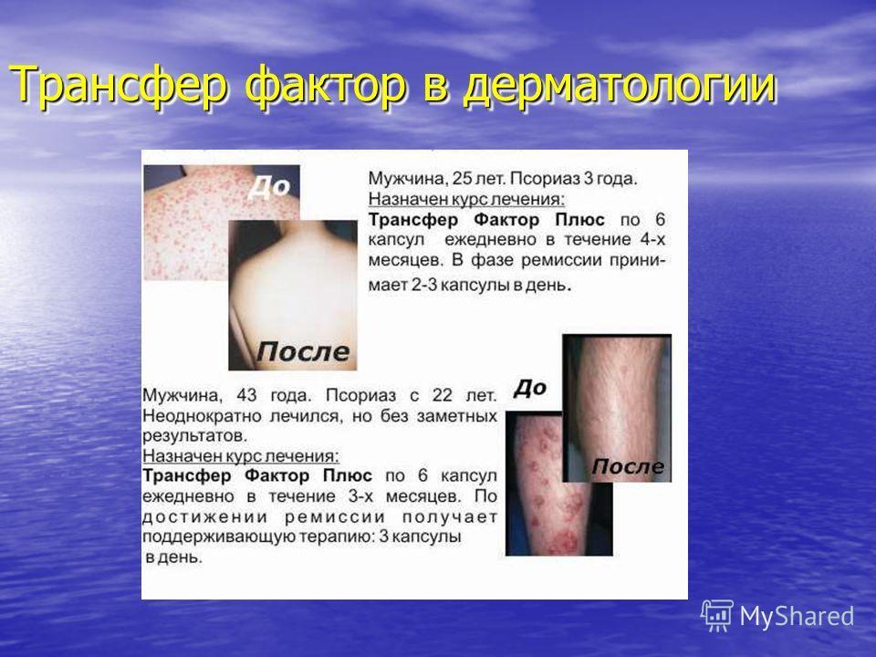 Трансфер фактор в дерматологии