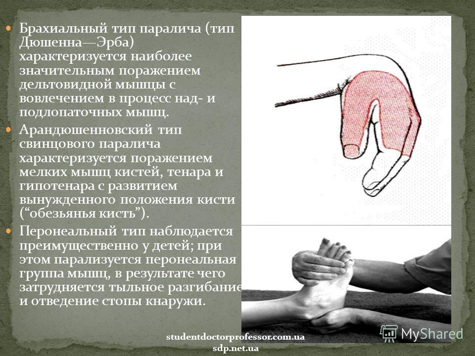 Брахиальный тип паралича (тип ДюшеннаЭрба) характеризуется наиболее значительным поражением дельтовидной мышцы с вовлечением в процесс над- и подлопаточных мышц. Арандюшенновский тип свинцового паралича характеризуется поражением мелких мышц кистей,