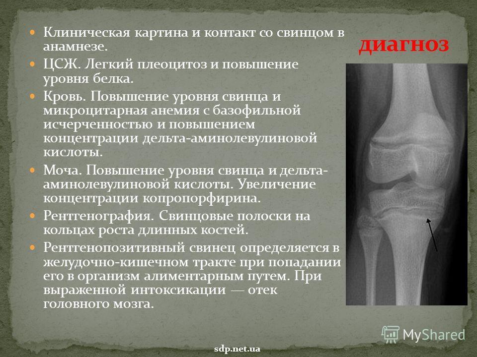 Плеоцитоз