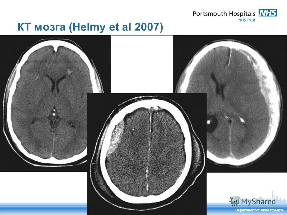Department of Anaesthetics КТ мозга (Helmy et al 2007)