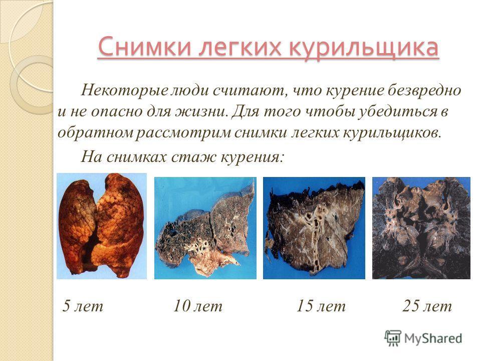 Снимки легких курильщика Некоторые люди считают, что курение безвредно и не опасно для жизни. Для того чтобы убедиться в обратном рассмотрим снимки легких курильщиков. На снимках стаж курения: 5 лет 10 лет 15 лет 25 лет