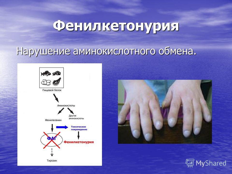 Серповидно – клеточная анемия Эритроциты принимают форму полумесяца.