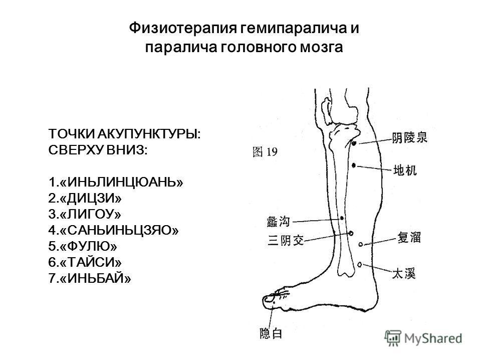 Физиотерапия гемипаралича и паралича головного мозга. Воздействие с помощью аппарата «Тунбао» на акупунктурную точку стопы для стимулирования нервной системы. Воздействие с помощью аппарата «Тунбао» на парные акупунктурные точки («саньиньцзяо» - «сюа