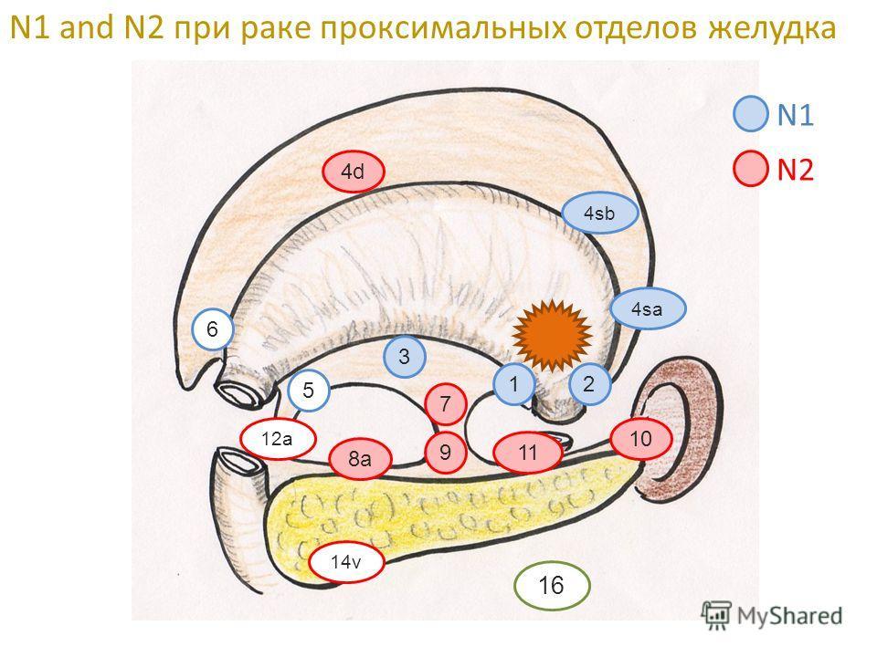 4d 4sb 12 4sa 6 3 5 7 8a 11 10 12a 9 14v 16 N1 N2 N1 and N2 при раке проксимальных отделов желудка