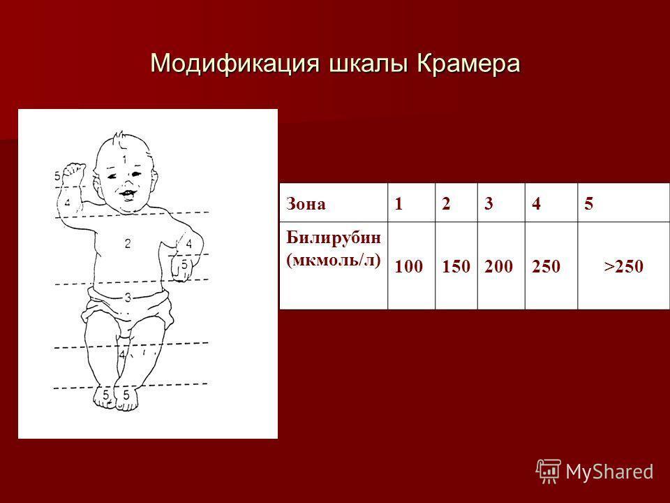 Модификация шкалы Крамера Зона12345 Билирубин (мкмоль/л) 100150200250>250