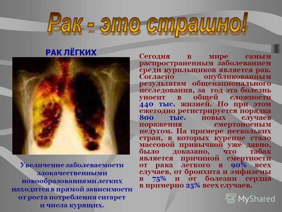 Сегодня в мире самым распространенным заболеванием среди курильщиков является рак. Согласно опубликованным результатам общенационального исследования, за год эта болезнь уносит в общей сложности 440 тыс. жизней. Но при этом ежегодно регистрируется по